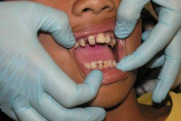 Schlechte Zähne und Zahnschmerzen